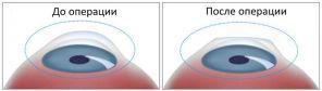 Лазерная коррекция зрения: новые технологии в офтальмологии